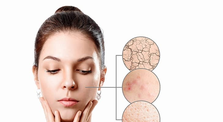 What Causes Acne on Forehead, Shoulders, Back, Neck, Chest