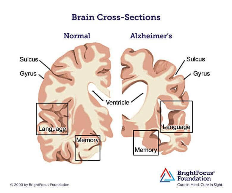 Acetylcholine And Alzheimer's Disease